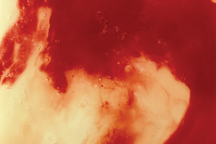 Blood and Semen III